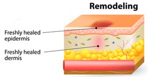 Remodeling Phase for Wound Healing - The Role of Negative Pressure Wound Therapy in Pet Wound Treatment - Pet Care Supplies Blog